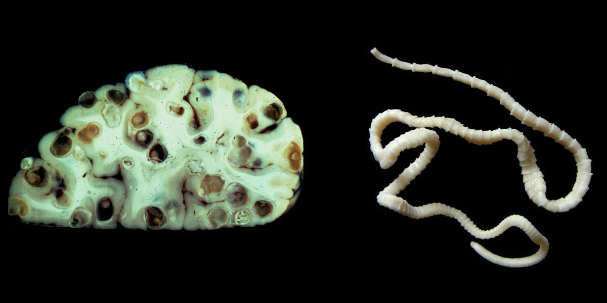 brain tapeworm - photo #4